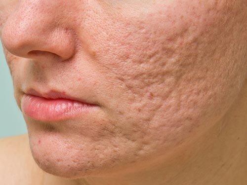 Η ακμή συνδέεται με κακή διατροφή, άγχος και ακαταλληλη φροντίδα του δέρματος