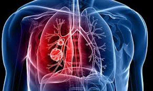 Ηλεκτρονική μύτη διακρίνει ασθενείς με καρκίνο πνεύμονα που ανταποκρίνονται στην ανοσοθεραπεία