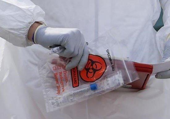 Ουσία που ανακαλύφθηκε στην Αυστρία θα δοκιμαστεί σε 200 βαριά νοσούντες