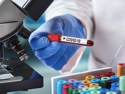 Πρωτεΐνες στο αίμα ασθενών με COVID-19 ενδεχομένως να προβλέπουν τη σοβαρότητα της περίπτωσής του