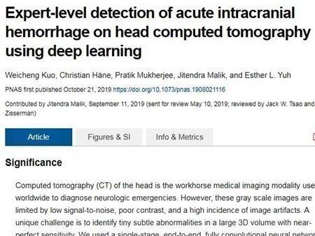 Νέο σύστημα τεχνητής νοημοσύνης εντοπίζει εγκεφαλικές αιμορραγίες καλύτερα και από ακτινολόγους
