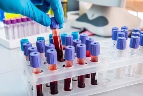 Τεστ αίματος προβλέπει αν μια γυναίκα θα έχει την τελευταία περίοδο της στα επόμενα 1-2 χρόνια