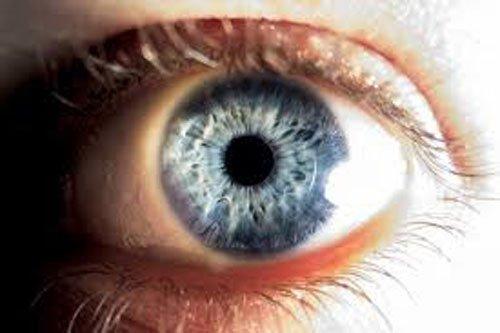 Τα άτομα που έχουν υψηλή μυωπία κινδυνεύουν περισσότερο να τυφλωθούν